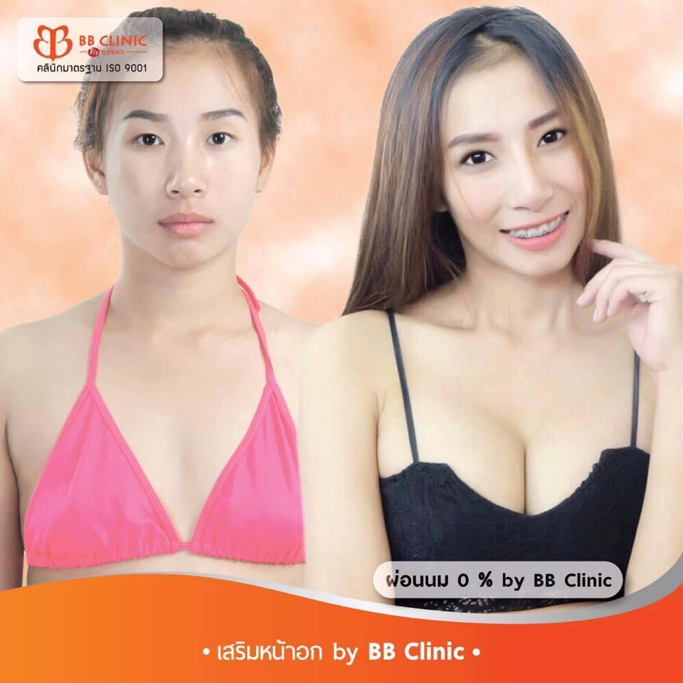 ทำนม BB Clinic