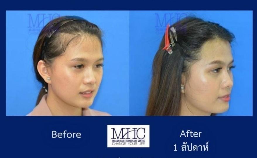 ศูนย์ปลูกผม MHC Million Hair Clinic